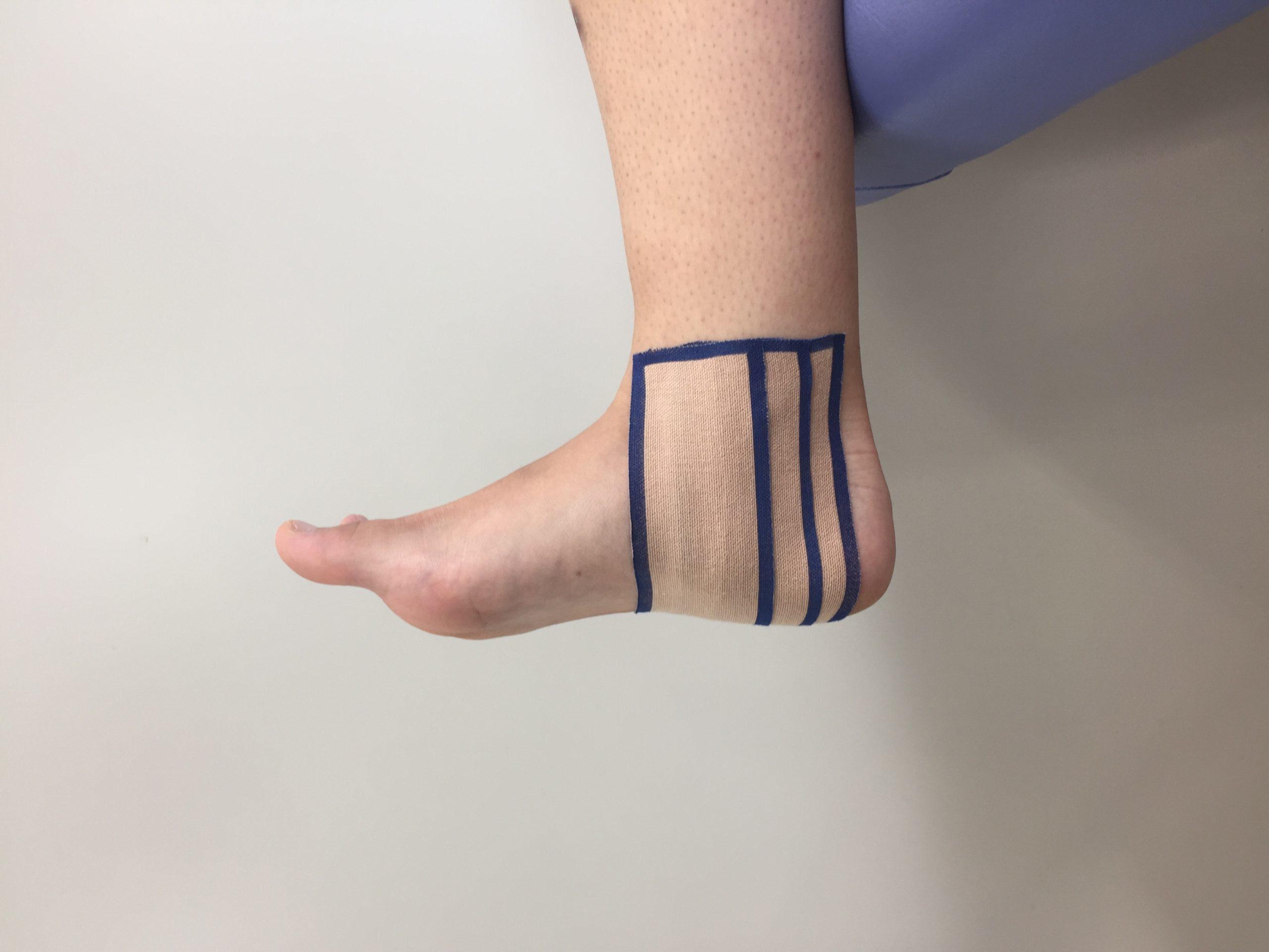 腓 くるぶし 靭帯 距 前